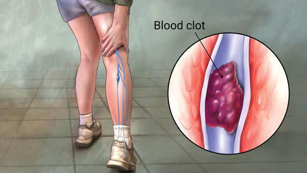 علائمی که نشان میدهند لخته خون در بدن دارید
